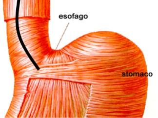 Hamer: Il carcinoma dell'esofago